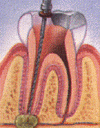 Root Canal1